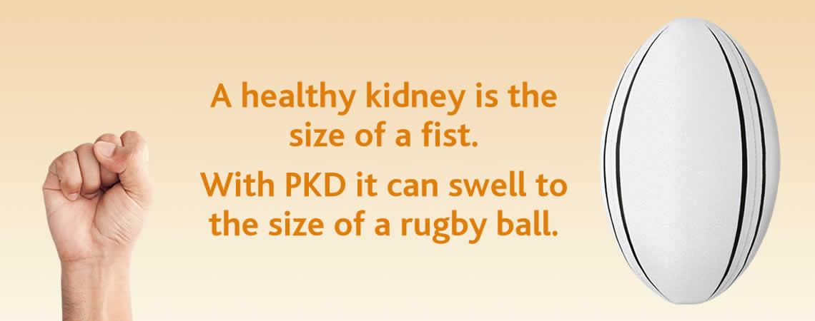 PKD virtual balloon race slider 4